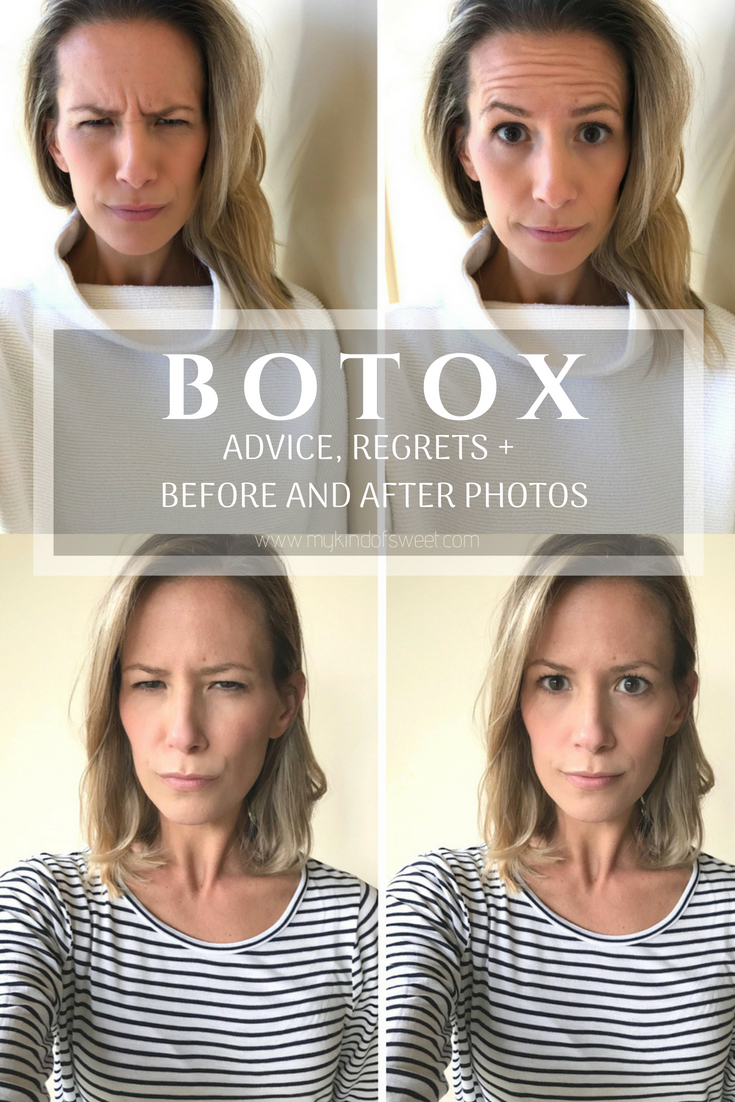 Botox advice, regrets, + before and after photos