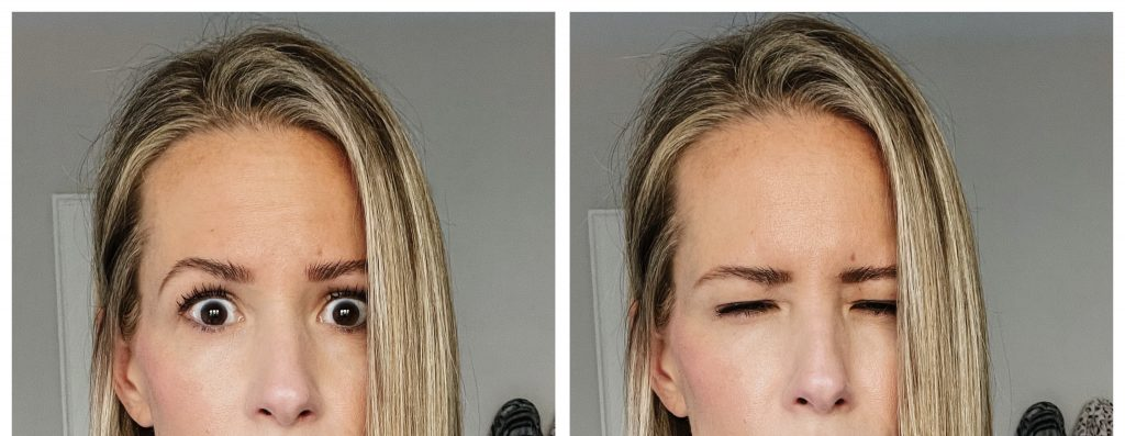 Botox, after